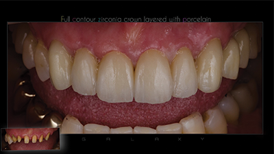 Implant Zirconia Crown Melbourne