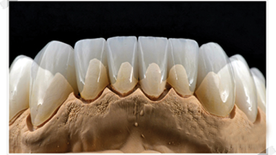 Crown Zirconia Melbourne