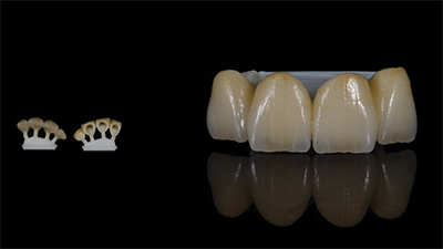 Crown Implant Services Melbourne