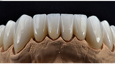 Melbourne Zirconia Crown